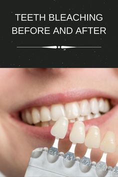 Teeth bleaching before and after result #teethbleaching #dentalcourse Bleach Teeth, Tooth Bleaching, Course Catalog, Graduation Year, Electronic Books, What Is Your Name, Hands On Learning, Dental Assistant, Oral Hygiene