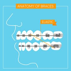 BRACES, PIECE BY PIECE: Elastics play a key part in aligning top and bottom teeth, correcting your bite!