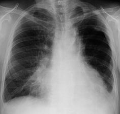 Aspiration pneumonia the best drugs for lung diseases.