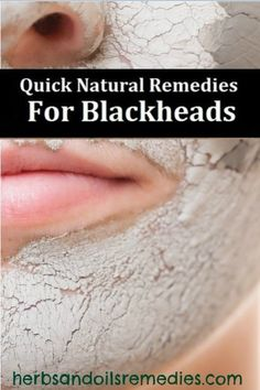 5 DIY Natural Ways to Remove Blackheads | I Did this, and i literally saw my blackheads practically coming out now!