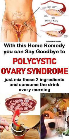 Just mix 2 ingredients and consume the drink every morning with this home remedy you can say goodbye to polycystic ovary syndrome. Cysts on the ovaries and fibroids in the uterus are both benign growths that Ovarian Cyst Treatment, Ovarian Cyst Symptoms, Polycystic Ovarian Syndrome, Uterine Fibroids, Holistic Remedies, Natural Health Remedies, Holistic Healing, Natural Cures, Natural Healing