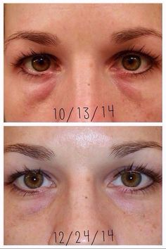 No bags!  The proof is in the pudding folks! There is a reason the REDEFINE Multi-function Eye Cream is a TOP SELLER! Message me!