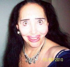 11 People Who Experienced EPIC PLASTIC SURGERY FAILS!!!
