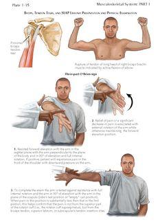 Frozen Shoulder Exercises, Shoulder Rehab Exercises, Back Pain Exercises, Shoulder Workout, Muscle Belly, Bicep Muscle, Shoulder Surgery, Spine Surgery, Tendon Tear
