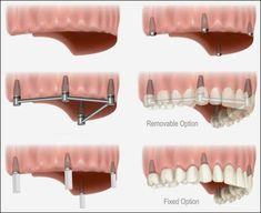 Dental Implants for Multiple Missing Teeth. When multiple teeth are missing or…
