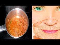 Domowy botox bez strzykawki! | KobietaXL.pl - Portal dla Kobiet Myślących