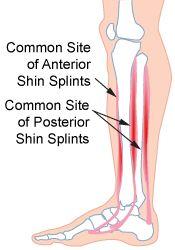 shin pain