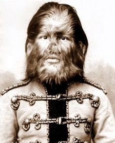 Fedor Jeftichew a Barnum circus performer in the 1800s was inflicted with hypertrichosis