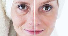 Beauty concept - skin care, anti-aging procedures, rejuvenation, lifting, tightening of facial skin Reverse Aging, Acide Aminé, Jojoba, Natural Makeup Looks, Homemade Skin Care, Tips Belleza, Flawless Skin, Anti Aging Skin Care, Moisturizer