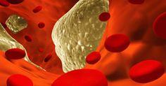 Vitamin K2: The Missing Link Between Diet, Disease and Death