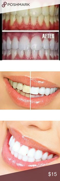 (2X) Super White Teeth Pen- in 5 Days!! Teeth whitening pen? Up to 50 applications per pen? Up to 4 shades whiter in only 1 week Accessories