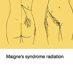 Maignes syndrome casefile follows a 28 year old woman with a long history of low back pain.