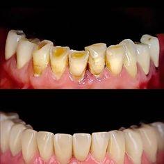 Smile makeover with dental crowns Dental Implants Social Media – Plastische Chirurgie - Everything About Dental Implant Teeth Health, Dental Health, Dental Care, Healthy Teeth, Oral Health, Teeth Implants, Dental Implants, Dental Hygienist, Dental Sedation