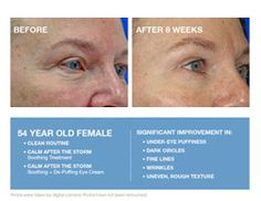 54 year old female - CALM AFTER THE STORM™ and CALM AFTER THE STORM™ Soothing + De-Puffing Eye Cream
