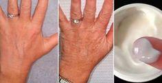 60 Yaşındayım Ancak Ellerim 30 Gibi Görünüyor, Sırrı Her Gün Bu Kremi Uygulamak Bu doğal tedavi ile, cildinizin görünümünü nasıl değişeceğini ve beğenme... - f. özbağ - Google+