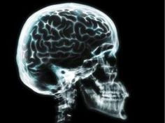 Brain damage from a concussion can linger for years after other symptoms have gone, according to new research at uOttawa.
