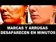 FROTE ESTO EN CUALQUIER CICATRIZ, ARRUGA Y DESAPARECEN EN CUESTIÓN DE MINUTOS! - YouTube