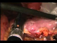 Laparoscopic Gastric Bypass    (Disclaimer: Some individuals might find the video a bit graphic.)