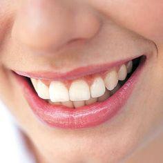 Printable DIY Teeth Whitener