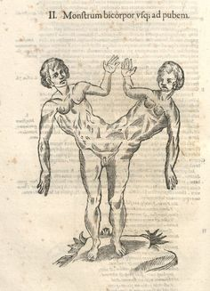 Monstrorum Historia by Ulisse Aldrovandi - Kunstkabinett Antique Illustration, Medical Illustration, Human Oddities, Alchemy Art, Esoteric Art, Witch Art, Black And White Drawing, Weird Pictures, Medieval Art
