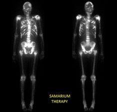 Sm-153 Sr-89 bone palliative therapy example labeled