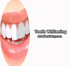 Teeth Whitening. Image by - http://www.artofdentistry.com/services/teeth-whitening/