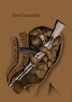 Chaz-Maviyane, fetal casualty