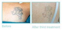 Tattoo after third treatment