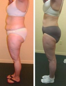 Superb With WEIGHT LOSS · Red Light TherapyEvery ... Great Ideas