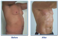 Vaser Liposuction in Abs: Before And After Photos