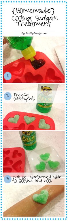 A MUST PIN for summer. Homemade Cooling Sunburn Treatment. Easy and so good.