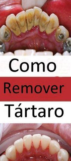 9cda0e459 94 melhores imagens de Dicas Caseiras - Beauty Cleaning ...