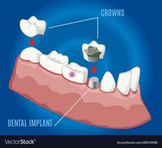 Teeth Implants, Dental Implants, Dental Clinic Logo, Dental Images, Cute Tooth, Human Teeth, Different Emotions, Dental Care, Dentistry
