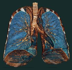 Lung    Volume Rendering of a HR Lung CT.  Note the tracheal structure.    Rendering done with a Carestream workstation.