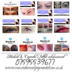 Medical & Cosmetic Tattoo Enhancement Treatments Available   #microblading #powderbrows #tattooeyebrows #lashliner #eyeliner #lipliner #lipblush #fulllipcolour #beautymarks #scalptattoo #hairtattoo #scalppigmentation #areola #areolapigmentation #3dnipple #nippletattoo #maleeyebrow #hairloss #alopecia #mastectomy #postop #scarreduction #pmu #spmu #permanentcosmetics #paramedicaltattoo