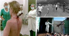 10 Most Disturbing Photos You Will Ever See