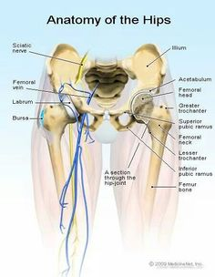 Read about hip bursitis (inflammation of the hip Trochanteric and ischial bursa) symptoms, causes, diagnosis, and treatment (cortisone shots, surgery) of chronic and septic bursitis. Hip bursitis is the cause of hip pain. Hip Anatomy, Muscle Anatomy, Body Anatomy, Human Anatomy, Psoas Iliaque, Hip Pain Relief, Bursitis Hip, Musculoskeletal System, Medical Anatomy