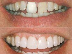 Facettes dentaires (Plaquettes) http://univers-dentaire.net/facettes-dentaires/
