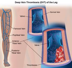 Deep Vein Thrombosis (DVT) / Thrombophlebitis | Johns Hopkins Medicine Health Library