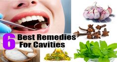 How To Treat Tooth Decay And Cavities With Home Remedies