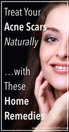 Treat Your Acne Scars Naturally with These Home Remedies | www.healyourselfDIY.com