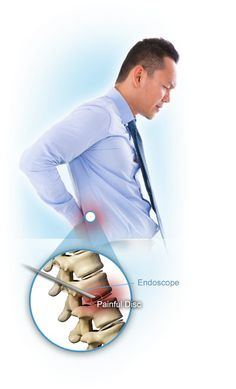 Treat Your Spine Issues with Low Cost Endoscopic Spine Surgery in India.