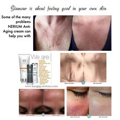 Nerium Anti-aging cream takes a fantastic care of every part of your body! Problems solved... Trust me.  Order at www.kzugaj.nerium.com