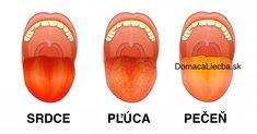 Vnútorné ochorenia tela sa zvyknú prejavovať aj na farbe, textúre a povlaku jazyka. Zistite, čo zmena na jazyku prezrádza o vašom zdraví.