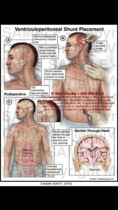 VP shunt (nothing like brain surgery as the very surgery of your life. I'm just terrified. That is all ~Imelda) Intracranial Pressure, Intracranial Hypertension, Vp Shunt, Neurological System, Pseudotumor Cerebri, Brain Aneurysm, Cerebrospinal Fluid, Surgical Nursing, Nursing Mnemonics