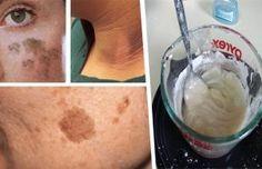Utiliza esta crema y podrás eliminar cualquier mancha de tu piel