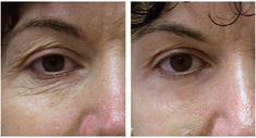 Senza botox, 15 anni in meno garantiti Co2 Laser Resurfacing, Skin Resurfacing, Botox Results, Botox Brow Lift, Fractional Laser, Lotion Tonique, Laser Clinics, Les Rides, Face Skin Care