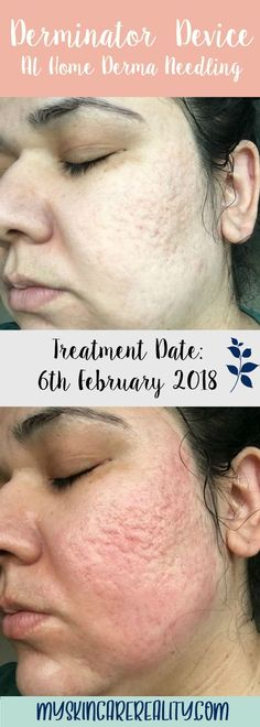 Video of my Derminator Device  at home derma needling session that I did on 6 February 2018.   This is the third time I've used this device to help with my acne scars but first time I've used it in 2018.   I can't believe I put such a raw, up close and personal video on YouTube but it's part of my 2018 of 'say yes to everything' campaign!   I'd love to hear any feedback you may have!       #myskincarereality #acnescar #derminator #facialdevice #acnescarredskin #acnescars #indentedscars #demo Red Skin, Acne Scar Removal, Acne Scars, Clear Skin, First Time, Third, February, Campaign, Face