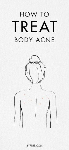How to treat body acne