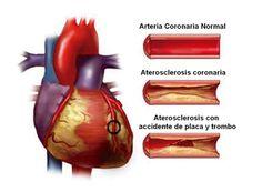 Arteria coronaria normal #aterosclerosis http://www.albertosanagustin.com